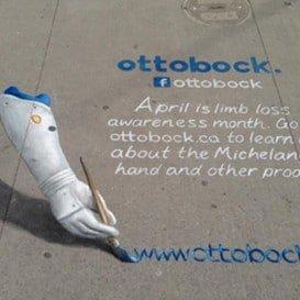 Ottobock - Limb Loss Awareness Month